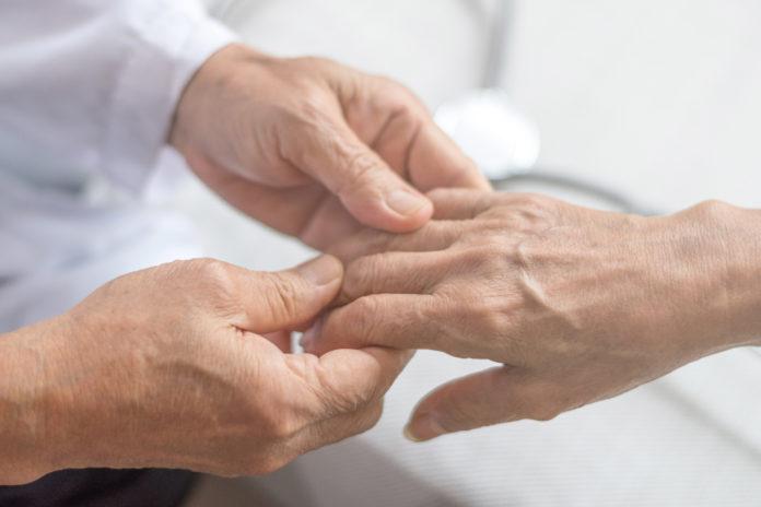 Общие сведения о системном склерозе (склеродермии)